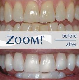 Zoom_final